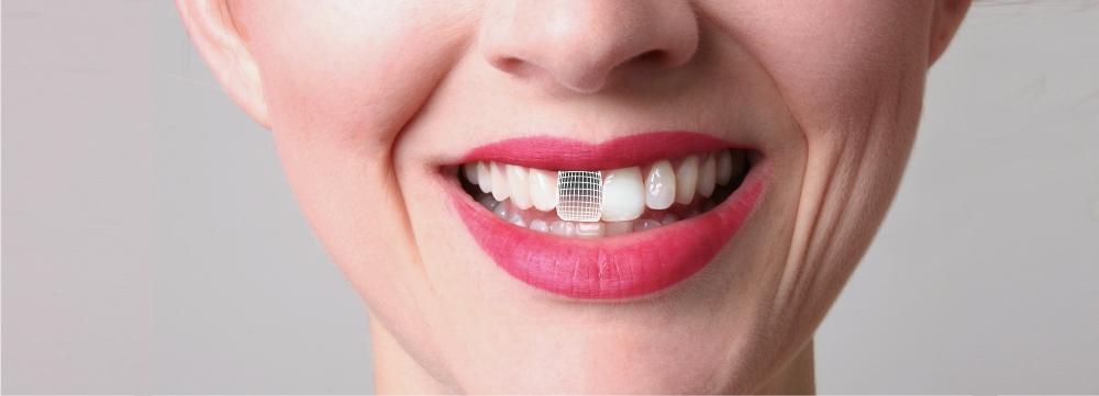 Скидка 15% на имплантацию после удаления зуба!